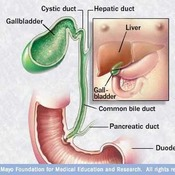 MAYO: Laparoscopic Gallbladder Removal - Location of the Other Ports: Tips