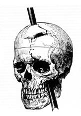 File:7449-phineas_gage.png