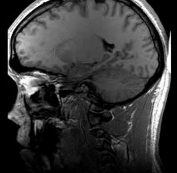 File:7454-MRI.png