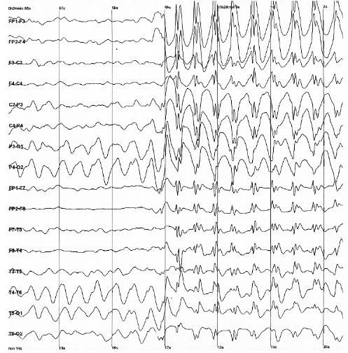 File:7455-EEG.png