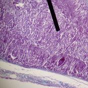 The Adrenal Medulla