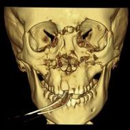 Oral/Maxillofacial Reconstructive Surgery