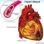 Clearing a totally blocked heart artery without surgery