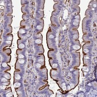 ace antibody