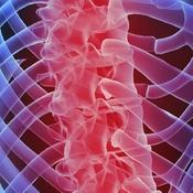 Osteoporosis Pathogenesis