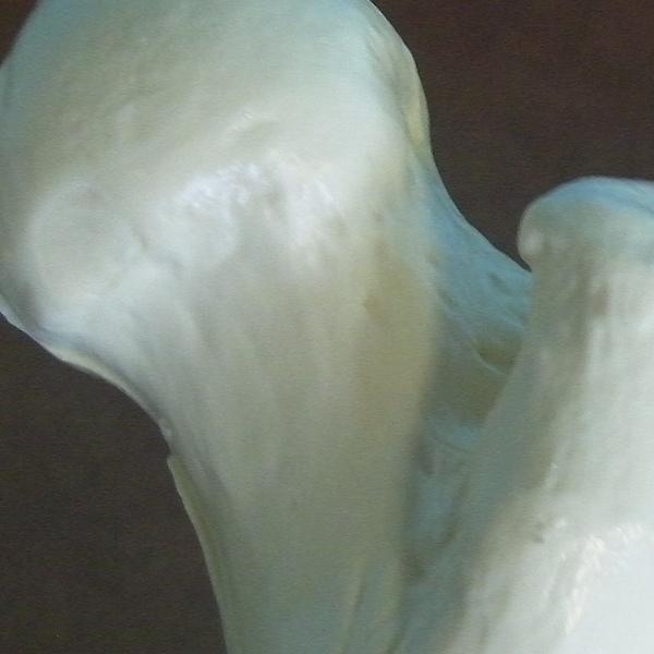 Gross Anatomy of the Femur