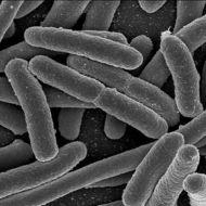 Procaryotes and Eucaryotes - Distinguishing Charactaristics