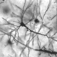 Neurons:  The Basics