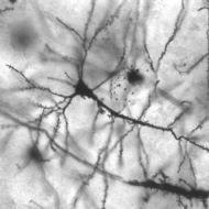 Neurons:  The Basics