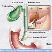 MAYO: Laparoscopic Gallbladder Removal - Peritoneotomy